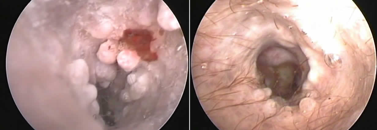 Polypid Ceruminous Gland Hyperplasia before and after treatment